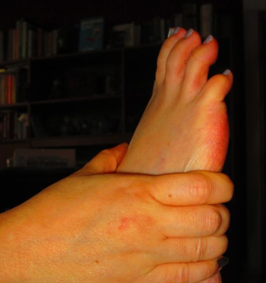At eight weeks post-surgery, one is allowed to cross ankles, pivot awkwardly and bend at the hip more than ninety degrees. My foot met me half-way, which was right friendly.